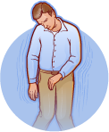 Cataplexy in narcolepsy icon
